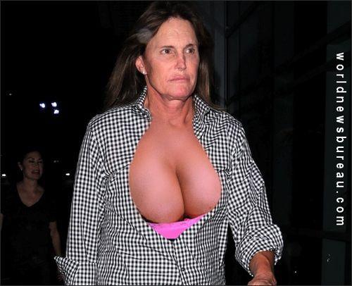 Jenner rack