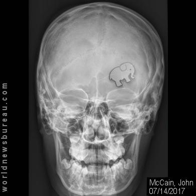 John McCain X-Ray